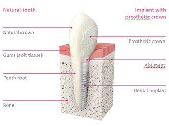 dental implant nobel biocare