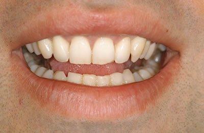 cosmetic um treatment post op 2