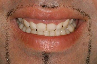 cosmetic gum treatment pre op