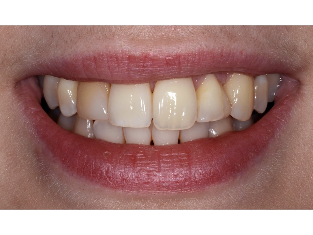 Uneven Teeth - Composite Contouring before
