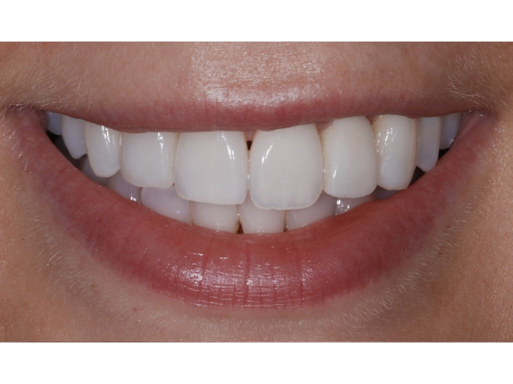 Uneven Teeth - Composite Contouring after