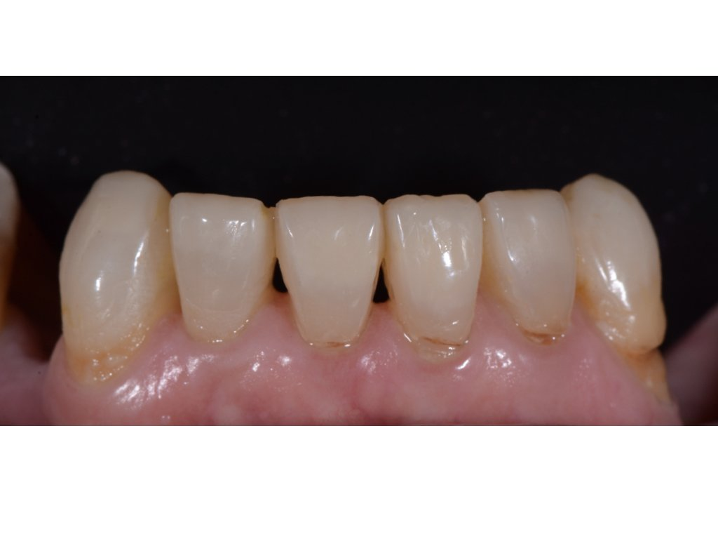 worn and chipped teeth after