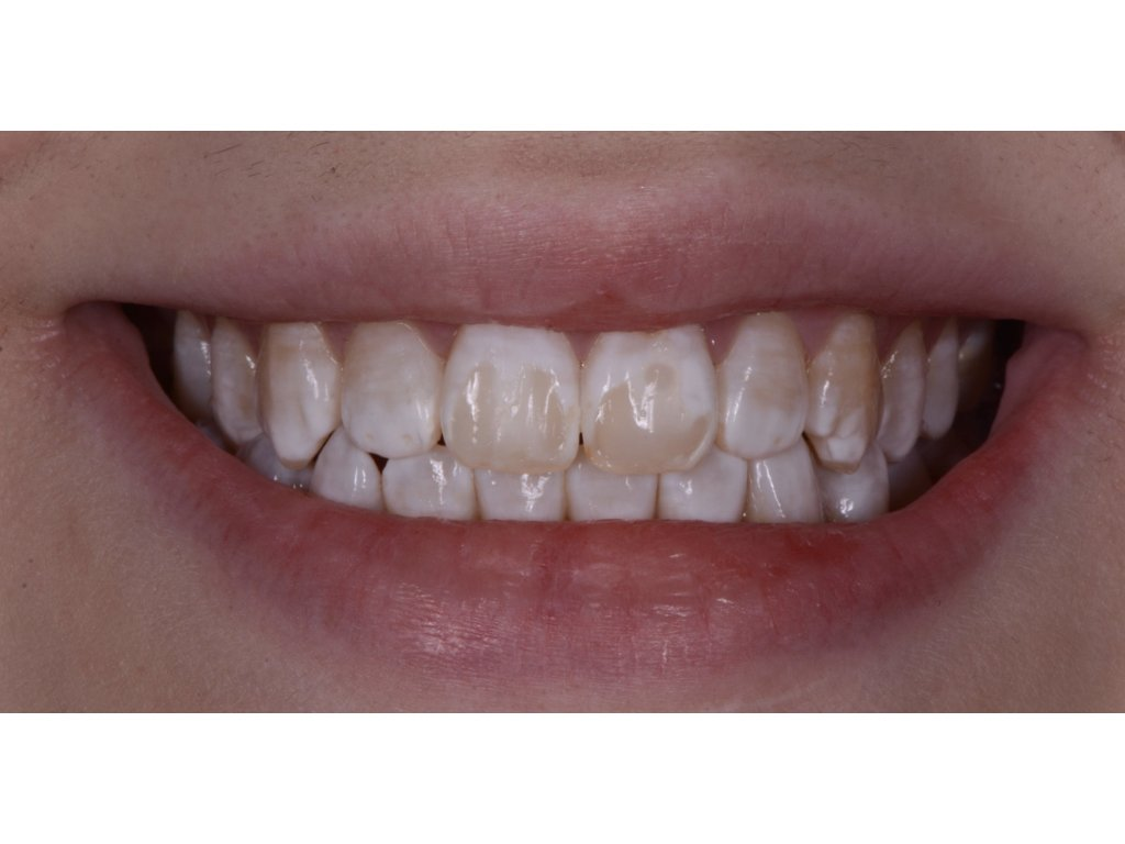 new bonding tooth white patches before