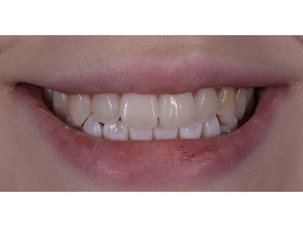 new bonding tooth white patches after