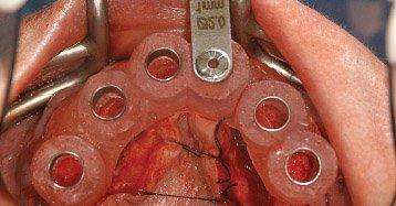 Restoration of the failing dentition