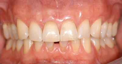 cosmetic gum treatment post op