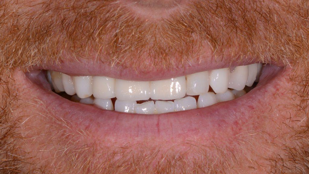 missing teeth dental implants after