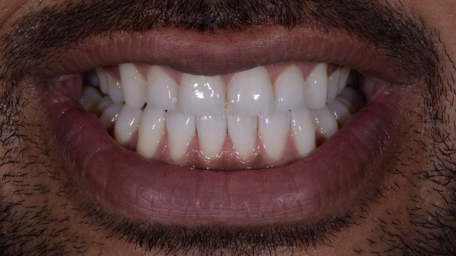 white spot front tooth after