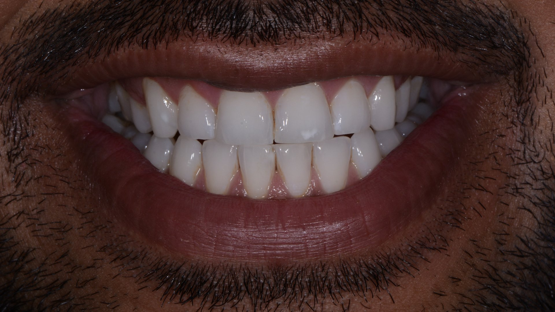 white spot front tooth composite bonding before