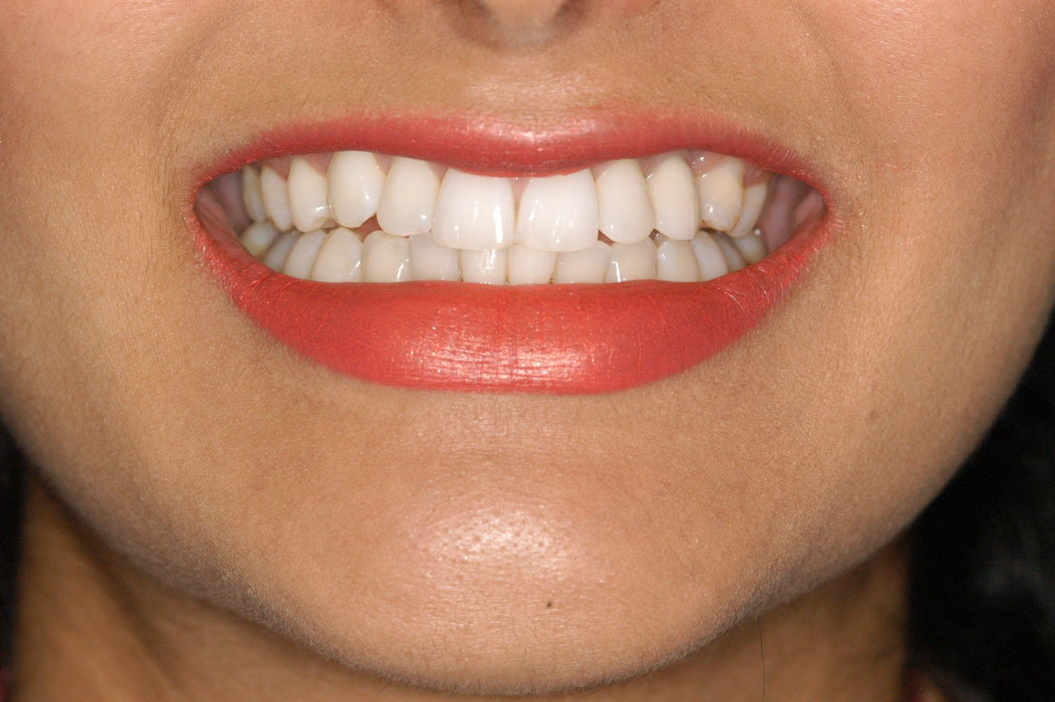 JD after orthodontic smile makeover