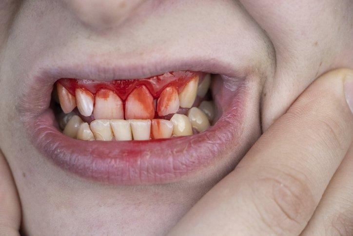 bleeding sore gum disease
