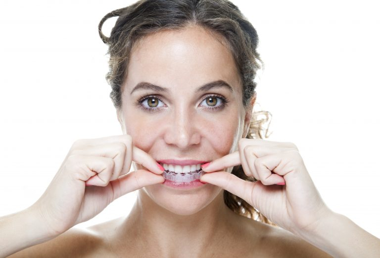 invisalign lite - woman smiling wearing clear braces